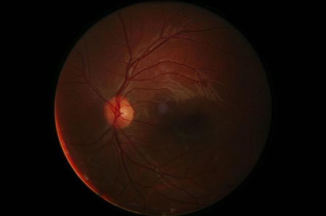 La diplopia causata dalle lesioni dei nervi cranici oculomotori